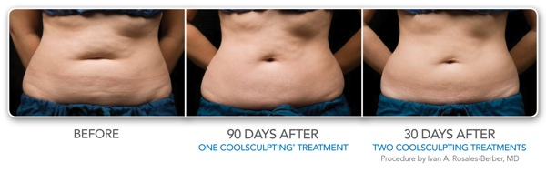 Comprehensive Dermatology Of Long Beach Coolsculpting