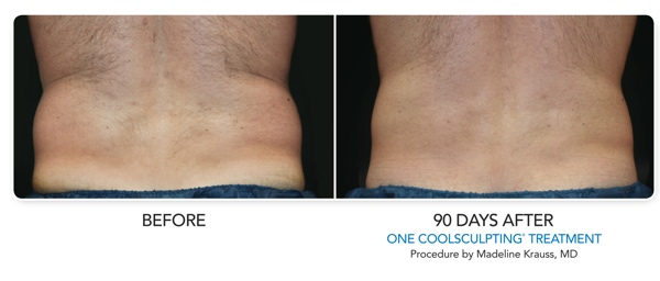 Comprehensive Dermatology Of Long Beach 187 Coolsculpting