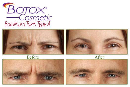 botox example