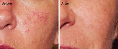 Comprehensive Dermatology Of Long Beach Excel V Laser