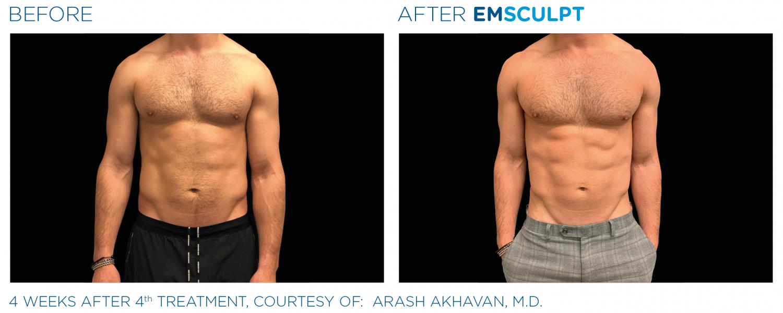 Emsculpt_PIC_Ba-card-male-abdomen-108_ENUS100